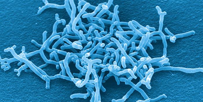乳酸菌とビフィズス菌は違うもの...